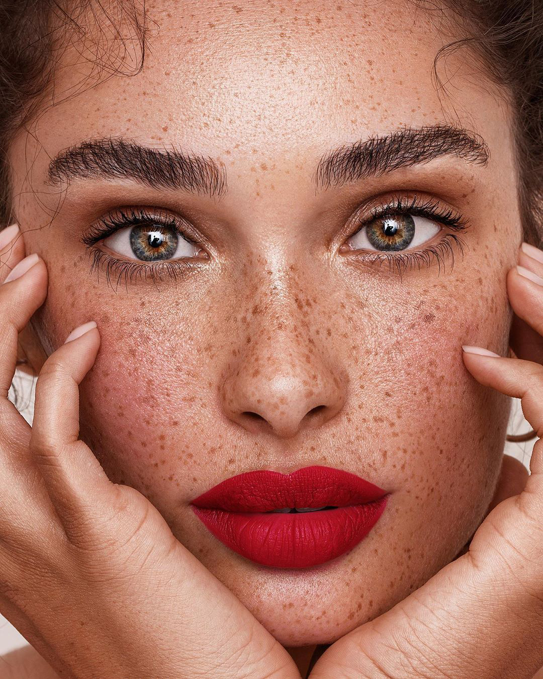 5 Common Skin Problems and How to Deal - Savoir Flair